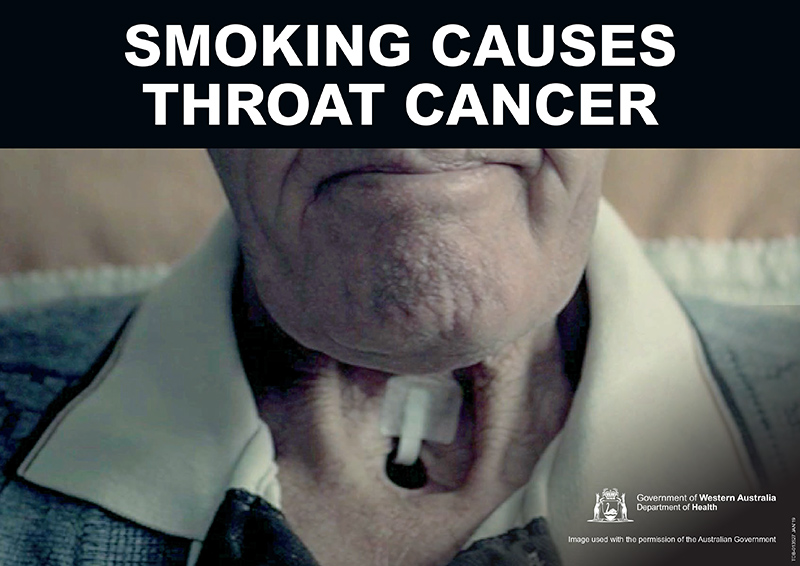 Banner: smoking causes throat cancer