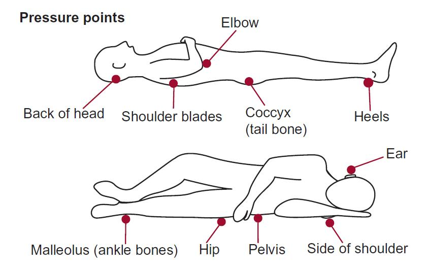 Pressure points on the human body when lying down