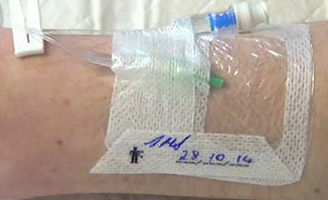 Intravenous cannula in patient's arm
