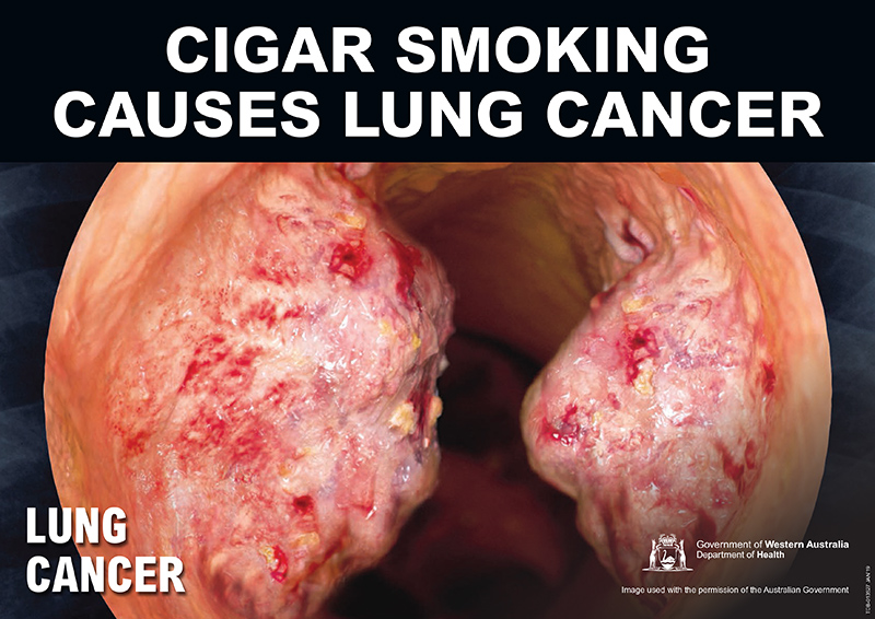 Banner: cigar smoking causes lung cancer