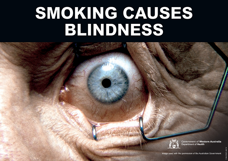 Banner: smoking causes blindness