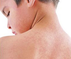 Boy with a red blotchy measles rash on his back, neck and face